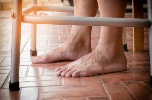 Could Your Aging Adult Develop Plantar Fasciitis?