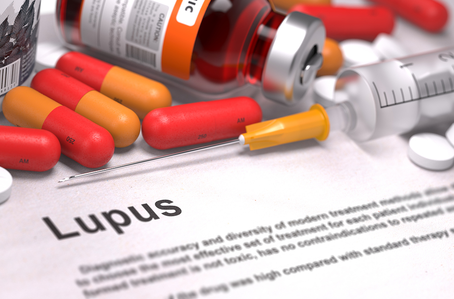 Are Lupus and Arthritis Related?
